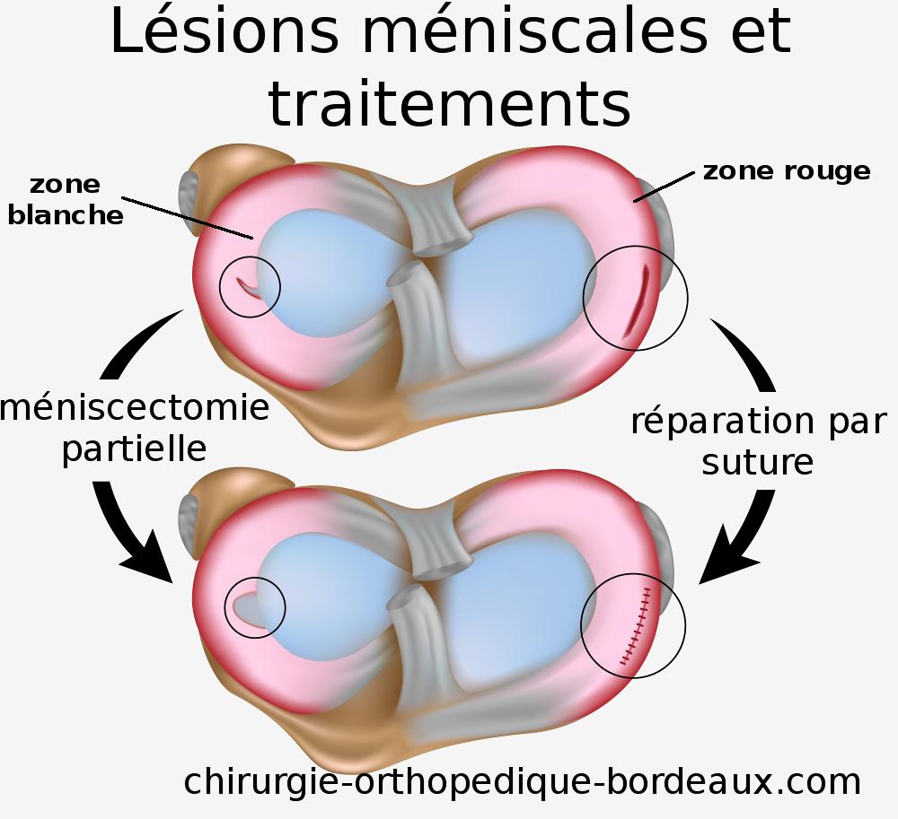 Traitement des l sions d chirures des m nisques du genou for Douleur sur le cote exterieur du genou